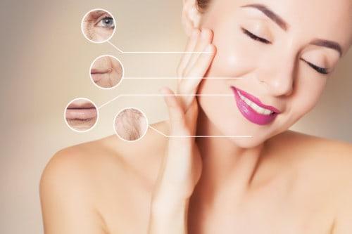 RF Skin Tightening product image