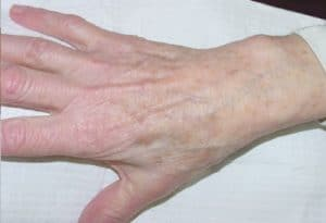 hand after tissue removal