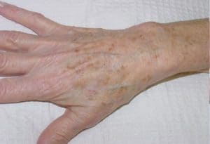 hand before tissue removal