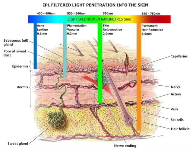 IPL Penetration Graphic
