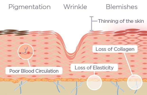 Illustration chemoexfoliation